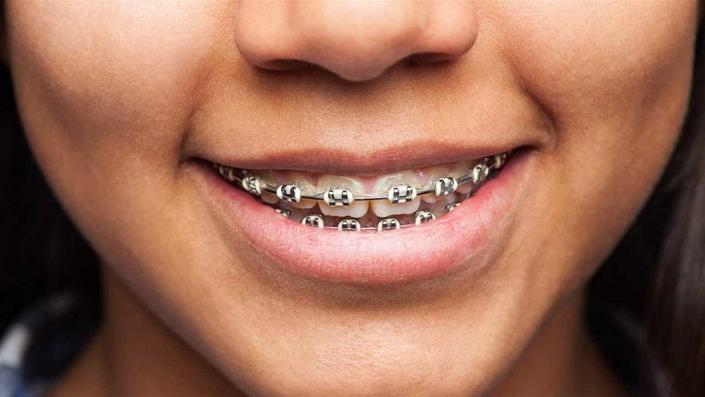 Há uma idade para a ortodontia?